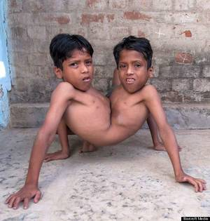 Male Conjoined Twins Porn - play
